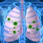 Vírusos tüdőgyulladásból bakteriális fertőzés