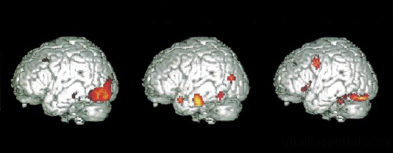 Látás és agy