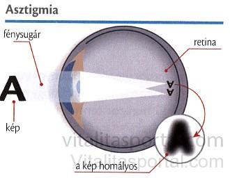 mi a szigmatikus látás