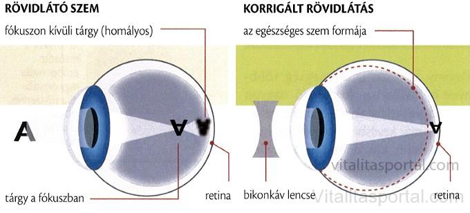 Rövidlátó szem